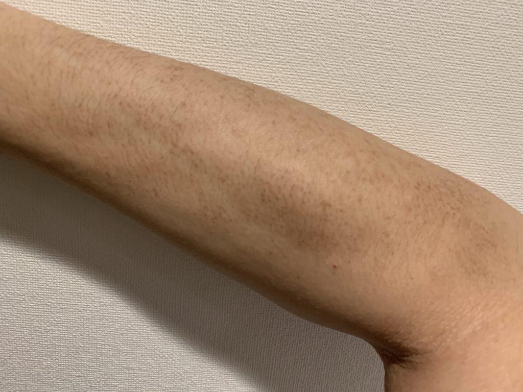 アトピー色素沈着11ヶ月目の腕